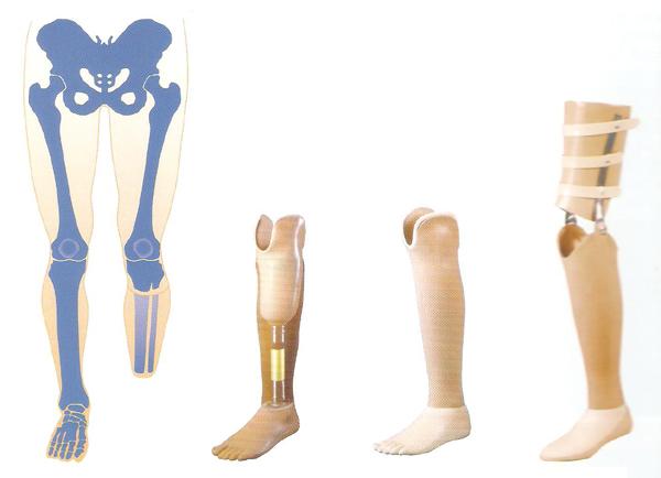 Prothesis knee